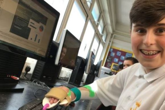 Teacher makes 3D printed finger for bike crash teenager